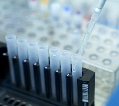 399 са заразените с COVID-19 българи, 75-годишната жена от Габрово е сред оздравелите