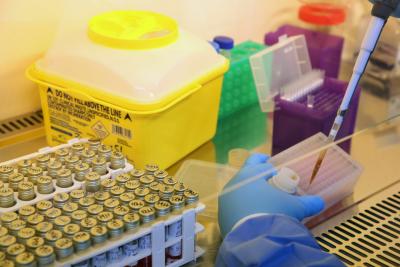 Над милион са потвърдените случаи на COVID-19 по света