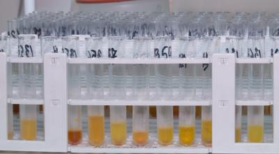 В Пловдив започва масово тестване за COVID-19