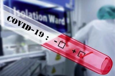 17 нови случая на коронавирус у нас, три са жертвите за денонощието