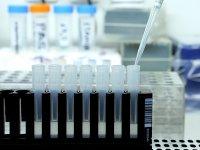 8 са новите случаи на коронавирус у нас, 457 е общият брой на заразените
